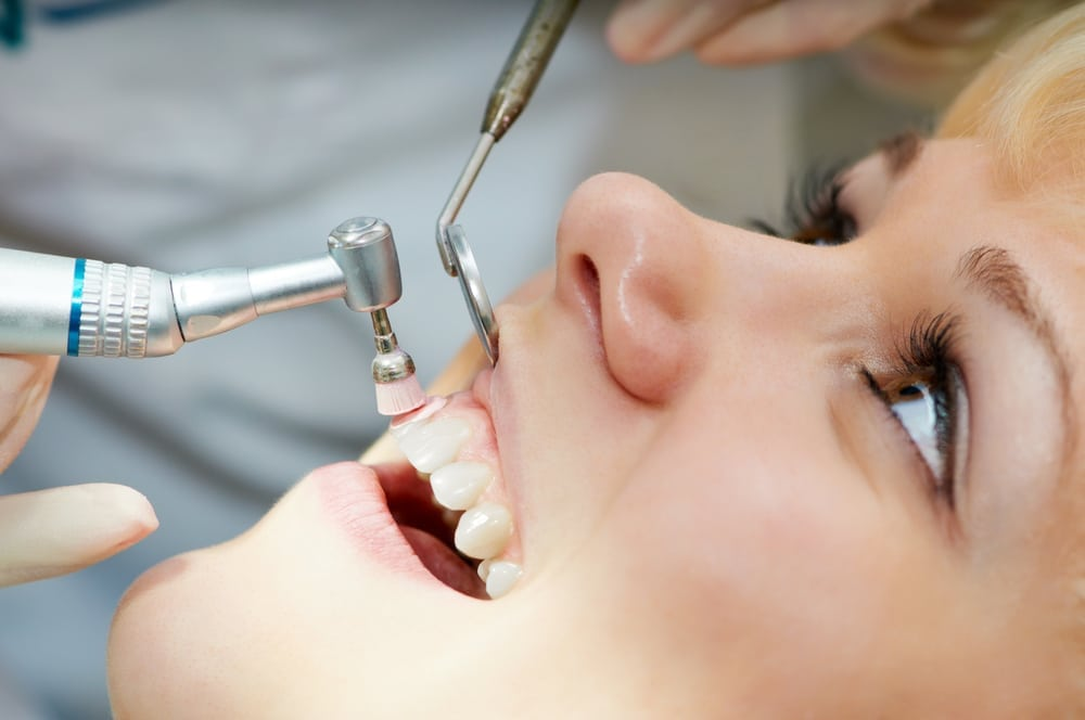 Dental Cleaning & Consultation