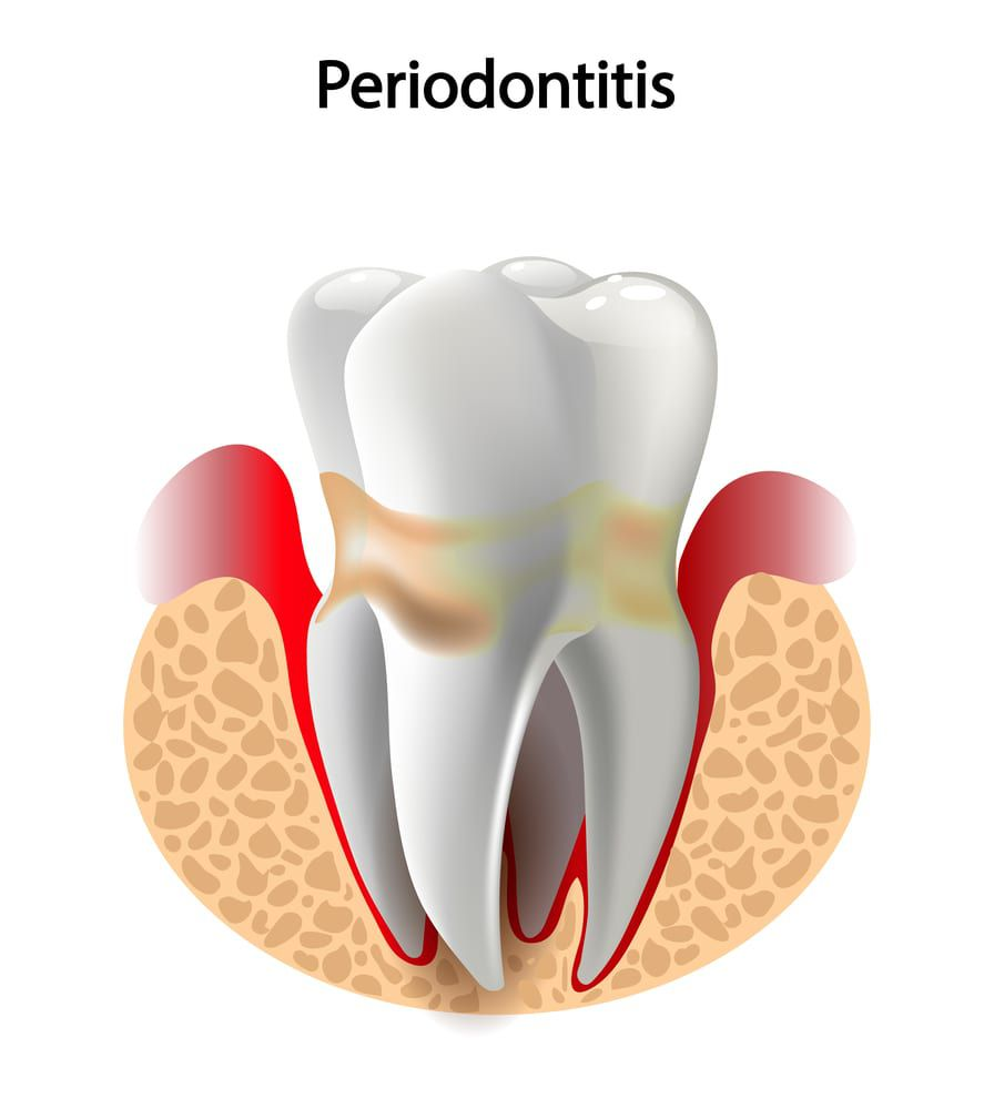 Periodontists Tooth