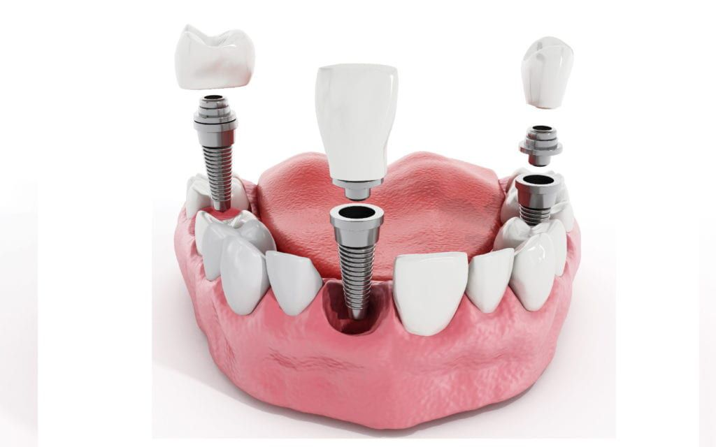 Dental Implant Render