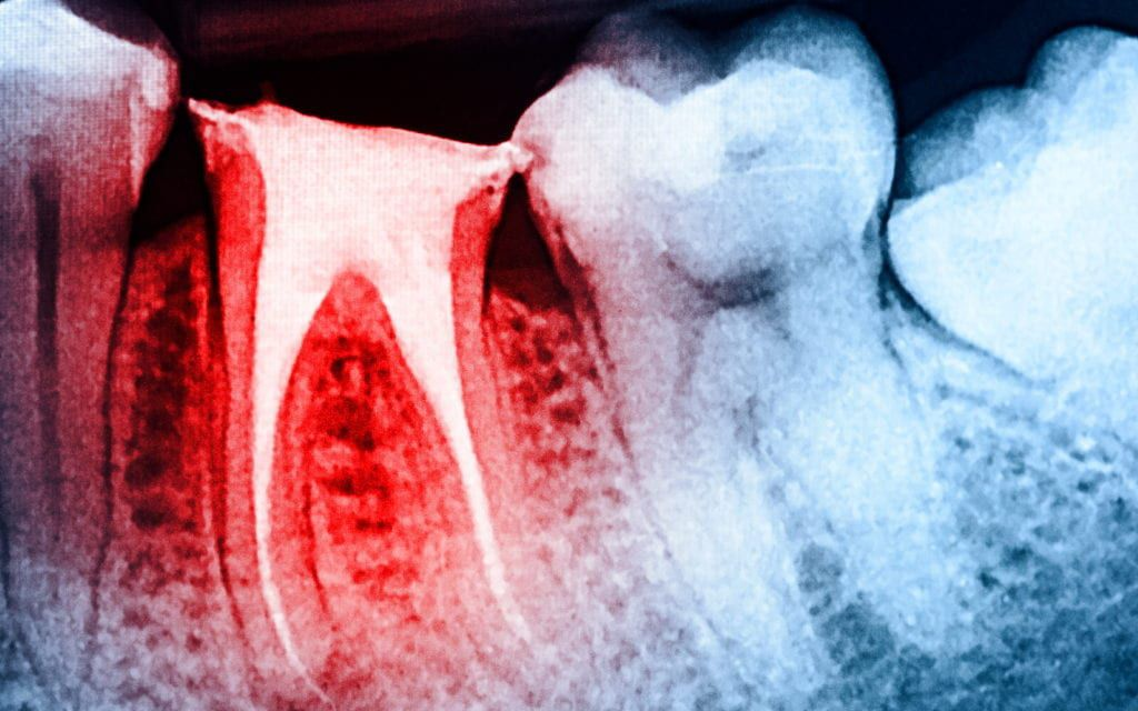 Root canal imaging
