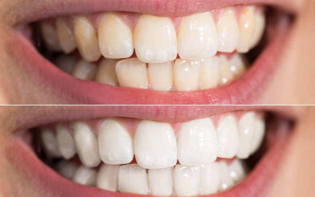 Before and after whitening treatments.
