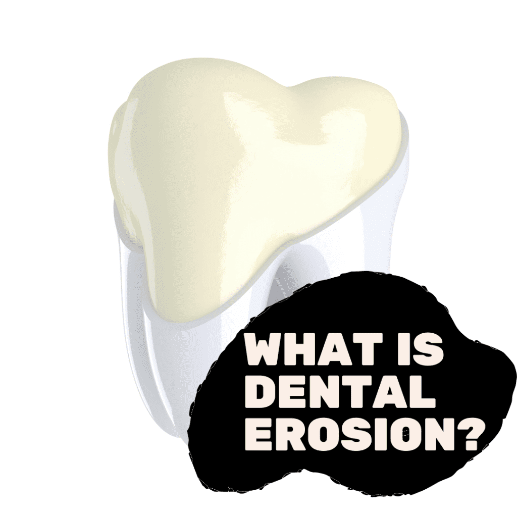 What is Dental Erosion_